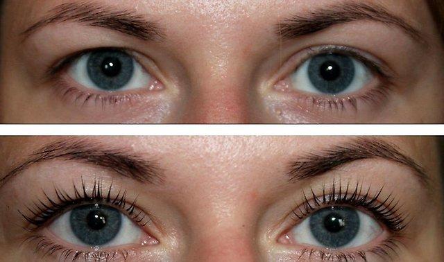 ботокс ресниц фото до и после Процедура BOTOX LASHES
