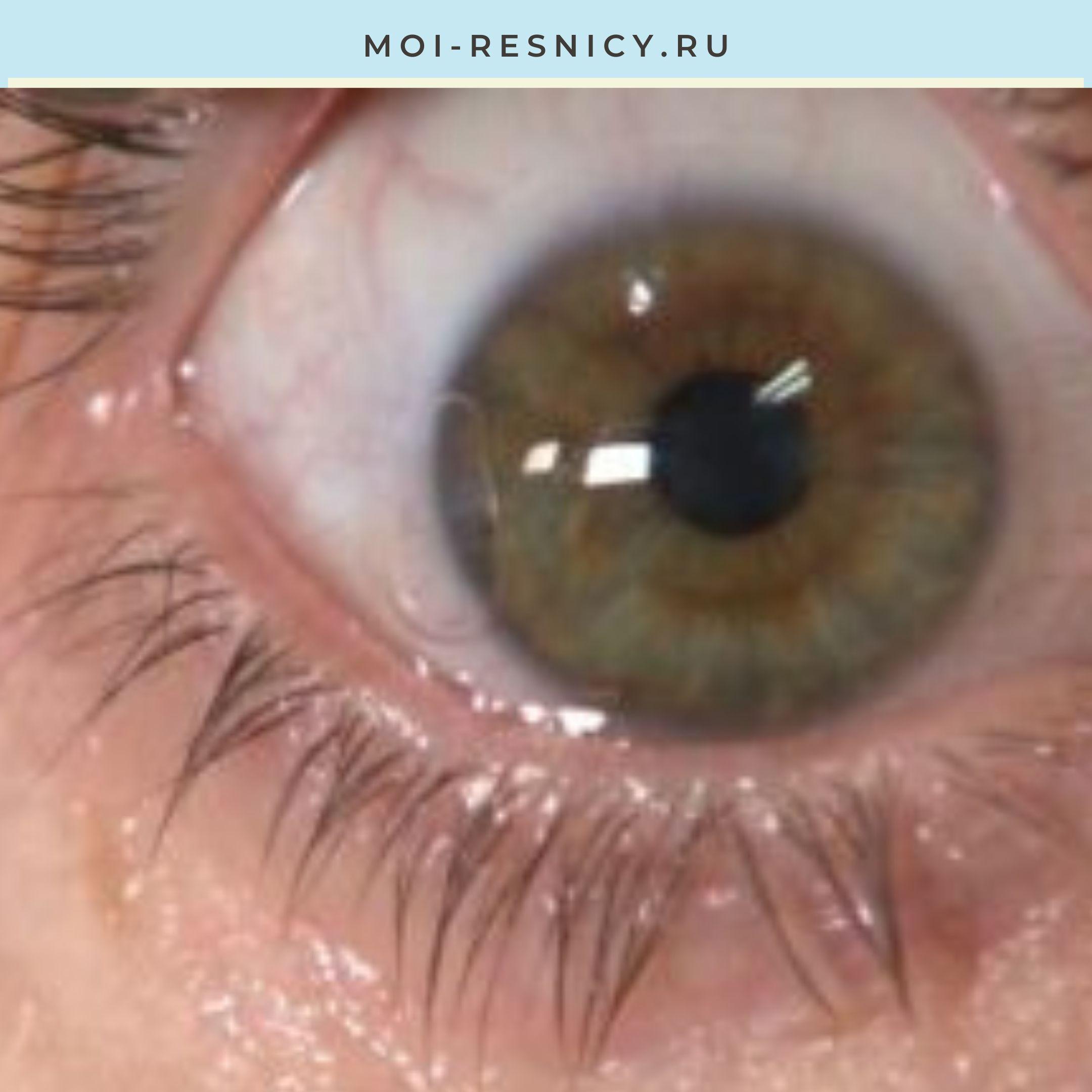 белый налет и ожог глаза после наращивания ресниц