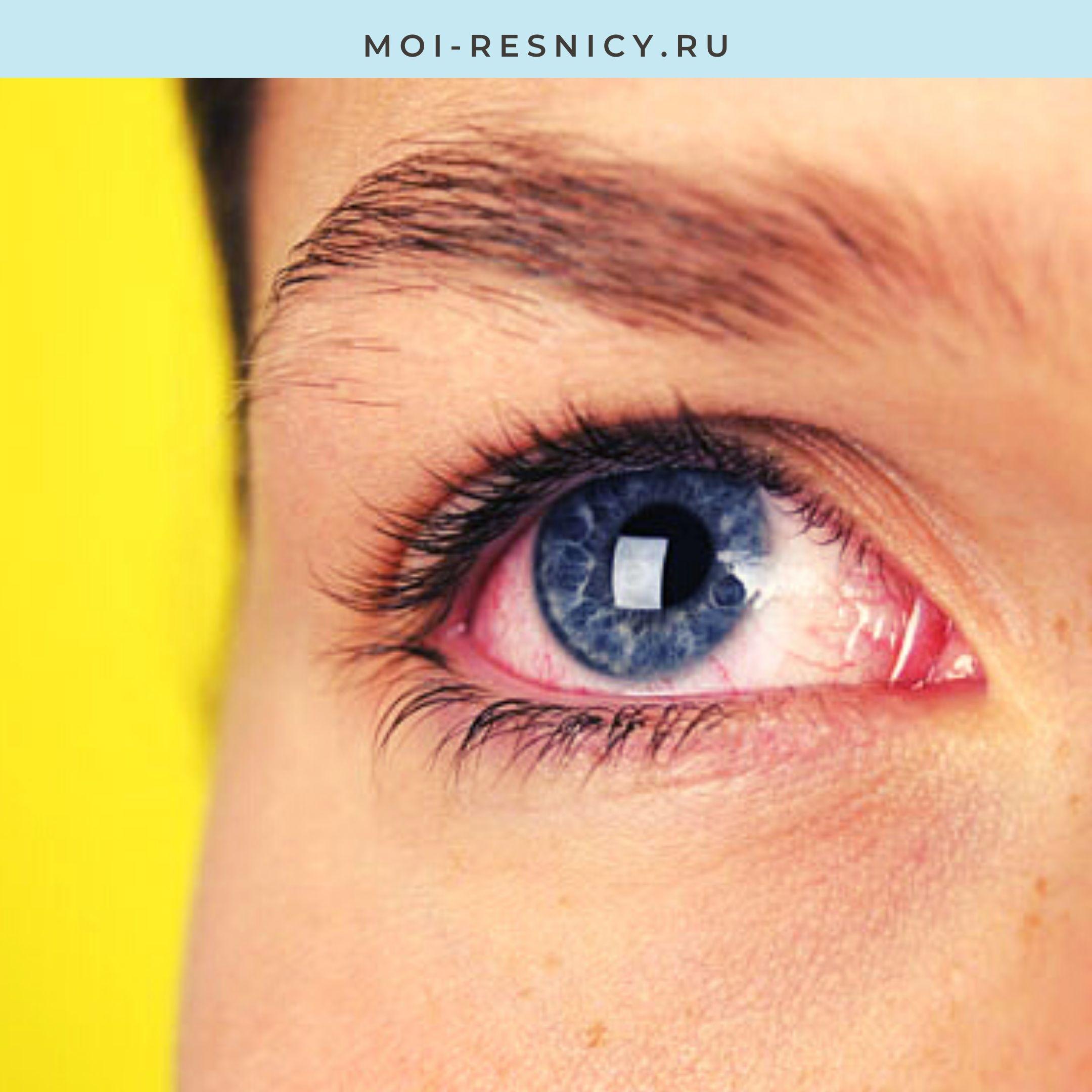особенности лечения ожога глаза после наращивания
